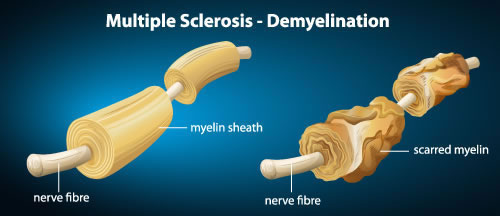 Multiple Sclerosis Demyelination Without Multiple Sclerosis Chiropractic Treatments