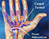 Carpal Tunnel Syndrome and Chiropractic Care.